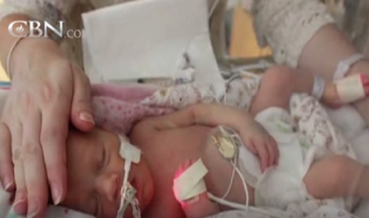 Baby Has Only 5-Minutes to Live, But WATCH After Grandfather Started to Praise God in The Midst!